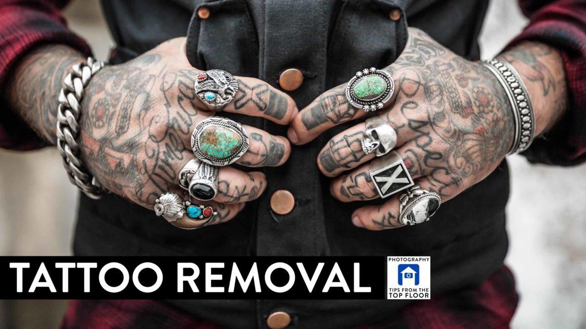 831 Tattoo Removal